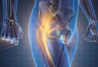 Dihydrokwercyna łagodzi stany zapalne i ból stawów