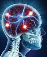 Fosfatydyloseryna: dowiedziony sposób walki ze starzeniem mózgu