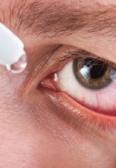 Zaskakujące przyczyny zespołu suchego oka