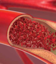 Endothelial Dysfunction and Cardiovascular Disease