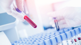 The Importance of Hormone Testing