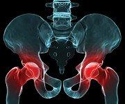 Zapalenie stawów - dwanaście przyczyn osteoartretyzmu