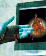 Zmniejszanie poziomu homocysteiny dla redukcji ryzyka udaru