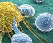 NF-kB a nowotworowy andquot;włącznikandquot;
