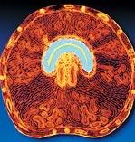 Objawy łagodnej hipertrofii prostaty