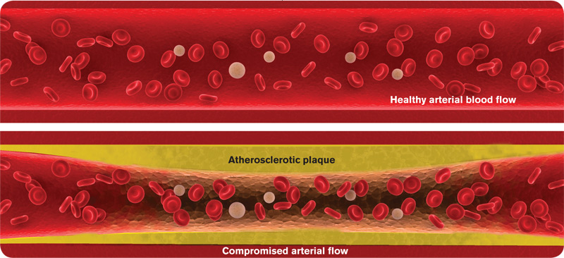 Quercetin Lowers Cholesterol, Fights Atherosclerosis